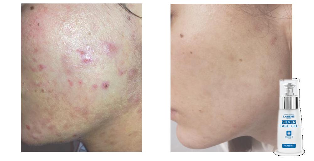 Efekty stosowania kosmeceutyków Larens zawierających Biopeptide Complex silver face gel