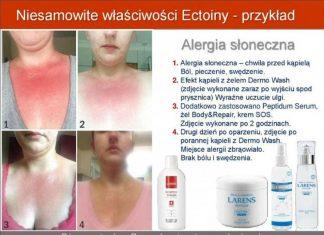 nisamowite wlasciwosci ectoiny alergia peptidum serum sos body repair dermo wash wellu larens