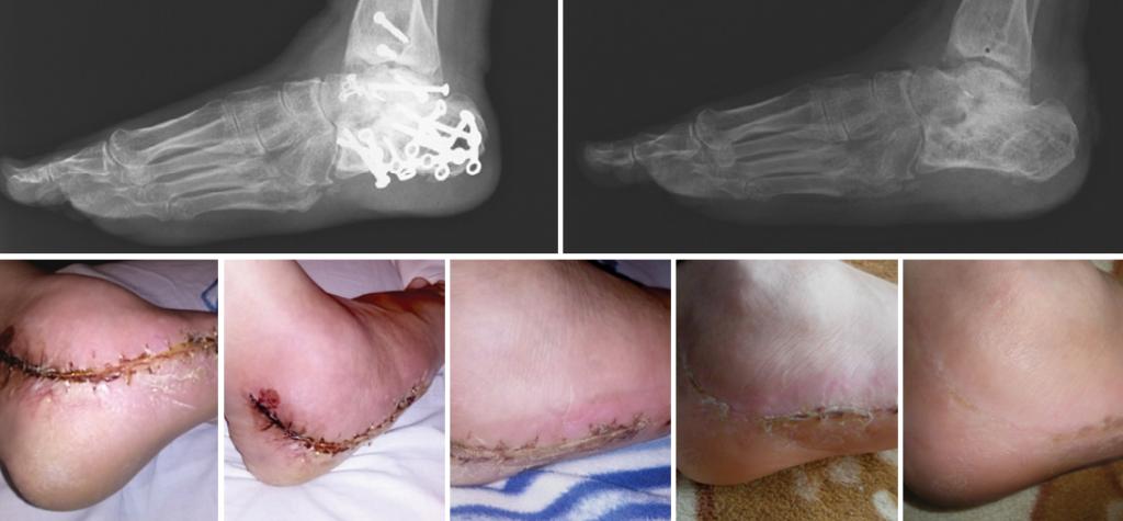 Pacjent po usunięciu zespolenia kości piętowej – rana pooperacyjna, 6 tygodni kuracji preparatami z Biopeptide Complex.