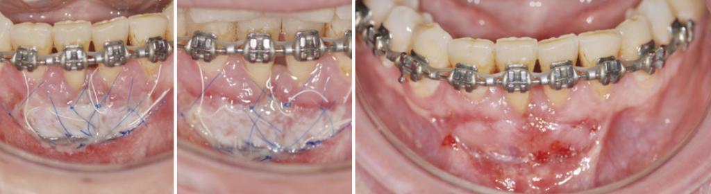 Pacjent po zabiegu stomatologicznym stosujący preparatyz Biopeptide Complex, 2, 3 i 9 dni po zabiegu.