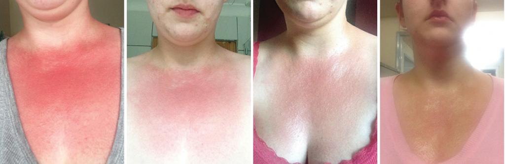 Poparzenie słoneczne, 1-dniowa kuracja preparatami z Biopeptide Complex.