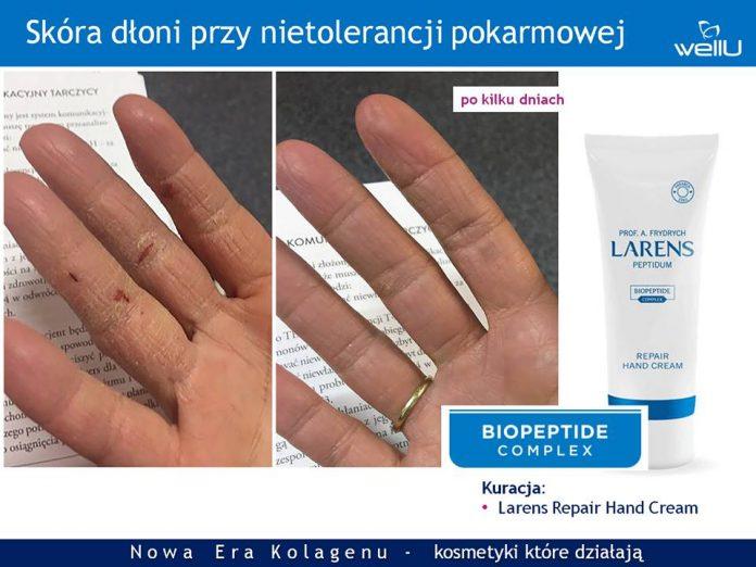 skora dloni przy nietolerancji pokarmowej po kilku dniach stosowania repair hand cream