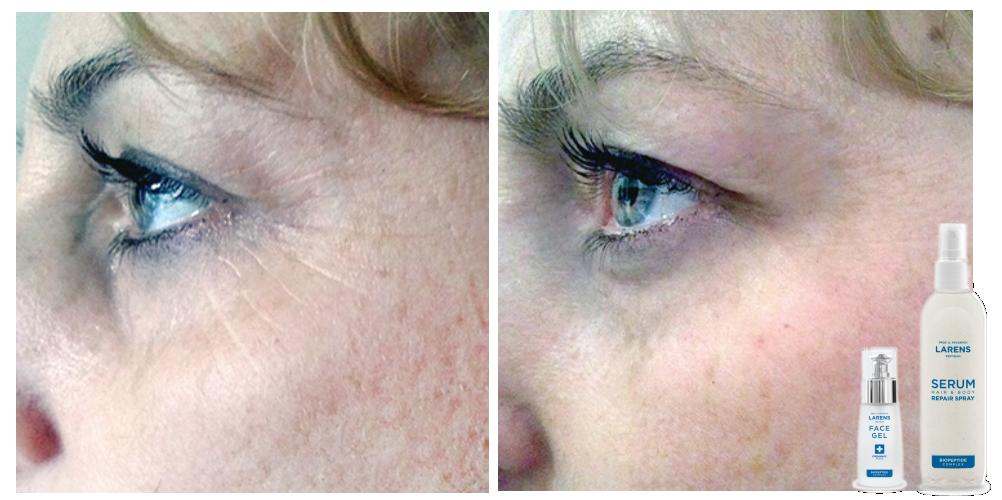 Efekty stosowania kosmeceutyków Larens zawierających Biopeptide Complex Hair&Body Repair Spray i żel Face Żel)
