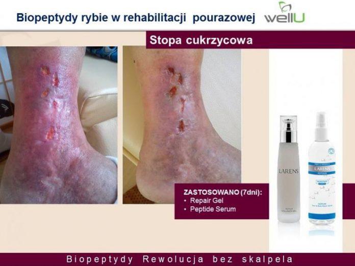 stopa-cukrzycowa biopeptydy rehabilitacja wellu larens