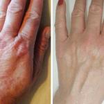 Dłonie z AZS, po tygodniowej kuracji preparatami z Biopeptide Complex.