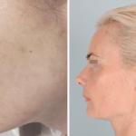 Efekty kosmetyczne i dermatologiczne po trzech miesiącach kuracji preparatami z Biopeptide Complex.