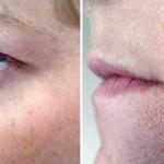 Efekty kosmetyczne i dermatologiczne po trzech miesiącach kuracji preparatami z Biopeptide Complex1